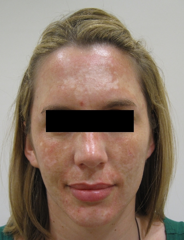 acne-scars-and-pigmentation-before-and-after-1