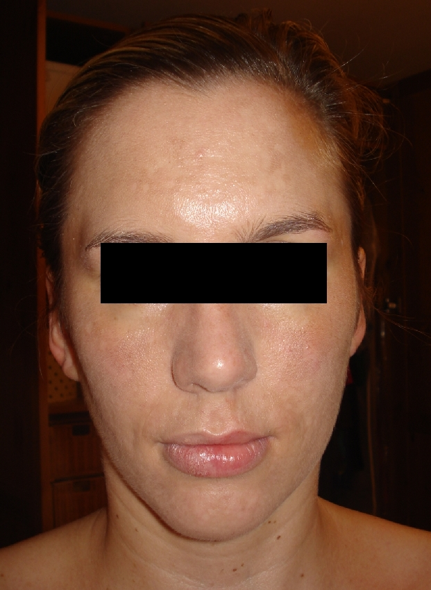 acne-scars-and-pigmentation-before-and-after-2