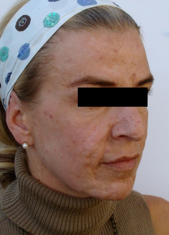 acne-scars-before-and-after-2