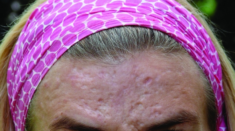 acne-scars-before-and-after-3