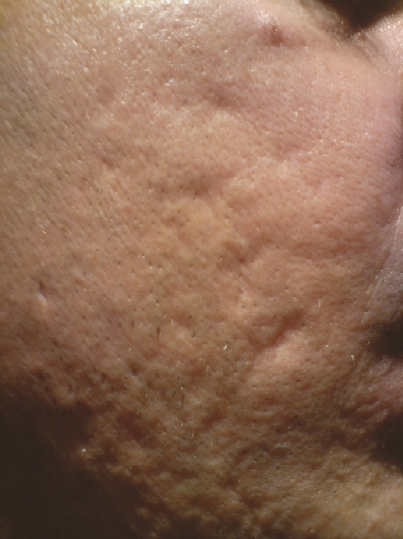 Dermarolling Before And After Photos Medical Micro Needling