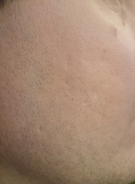 acne-scars-before-and-after-6