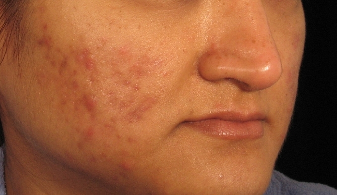 acne-scars-before-and-after-7