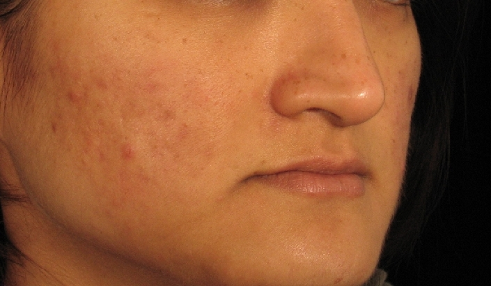 acne-scars-before-and-after-8