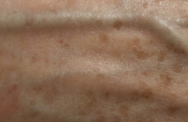 fine-lines-and-pigmentation-before-and-after-1