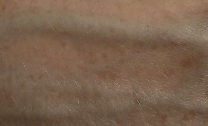 fine-lines-and-pigmentation-before-and-after-2