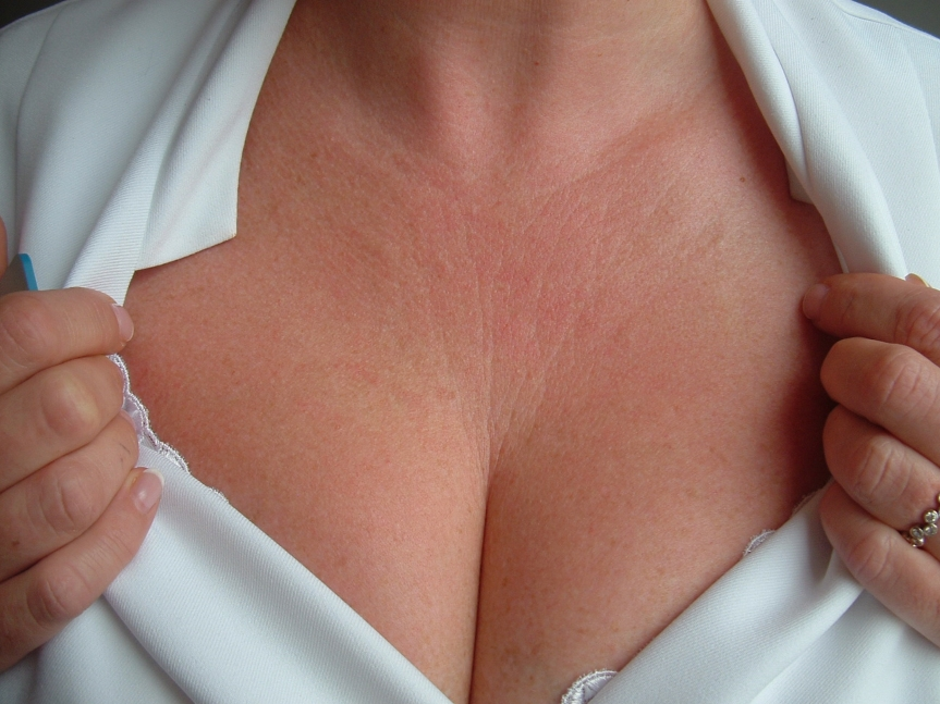 lécolleté-fine-lines-and-wrinkles-before-and-after-1