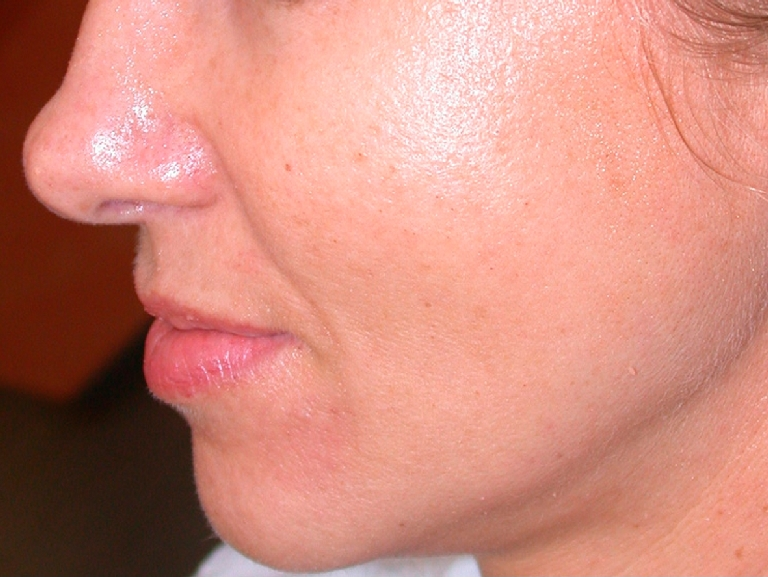 oily-pores-and-enlarged-pores-before-and-after-1