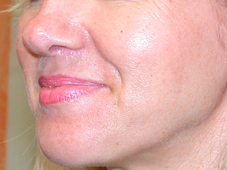 oily-pores-and-enlarged-pores-before-and-after-2