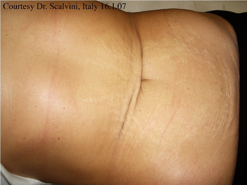 stretch-marks-before-and-after-image-1