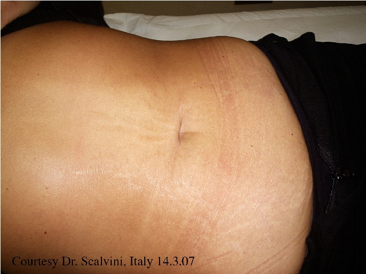stretch-marks-before-and-after-image-2