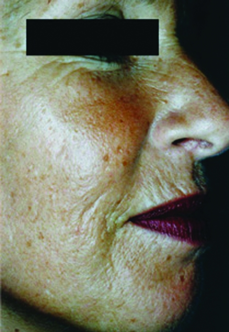 wrinkles-and-pigmentation-before-and-after-image-1