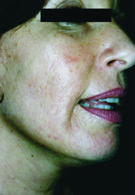 wrinkles-and-pigmentation-before-and-after-image-2