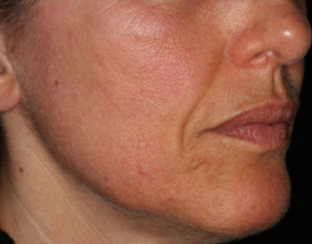 wrinkles-and-pigmentation-before-and-after-image-3