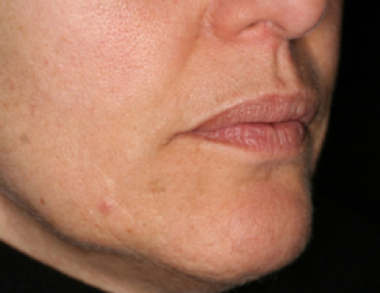 wrinkles-and-pigmentation-before-and-after-image-4