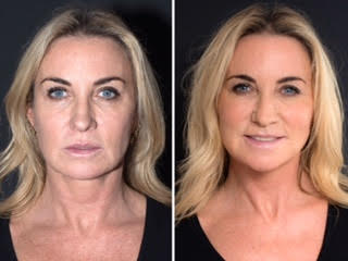 Star Treatment Meg Matthews Before Amp After Silhouette