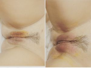 Vagina plastic surgery before and after