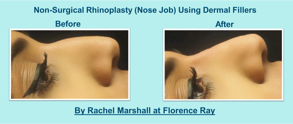 nose 2 Florence Ray