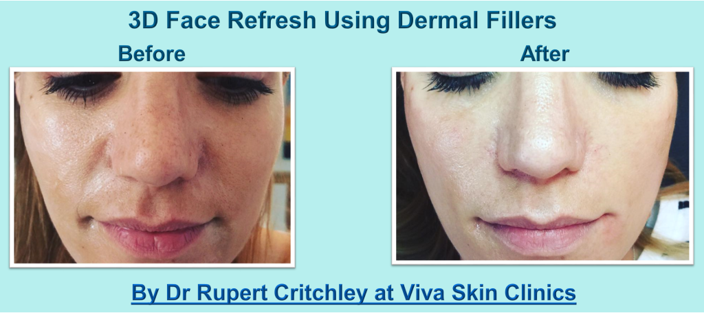 Rupert 3d face dermal fillers