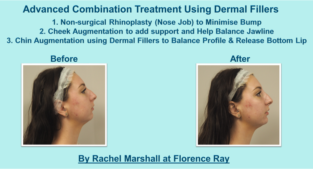 Treatment Combo Florence Ray