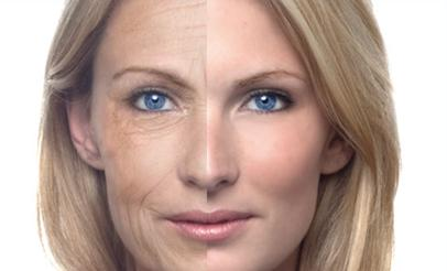 Antiaging-Botox-Injection_1