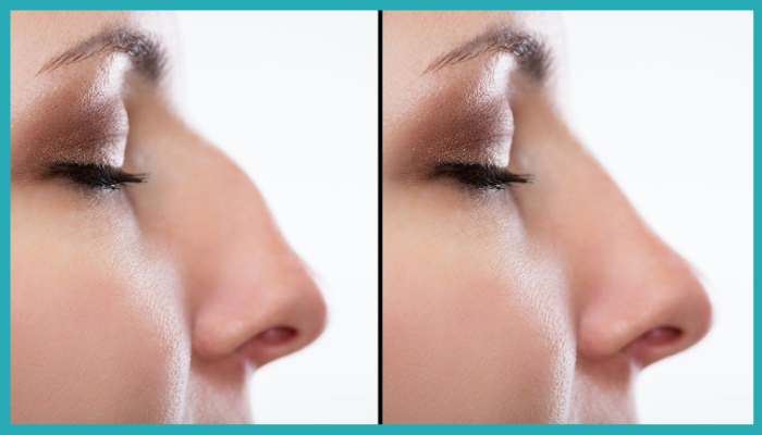What Is A Non Surgical Nose Job Save Face