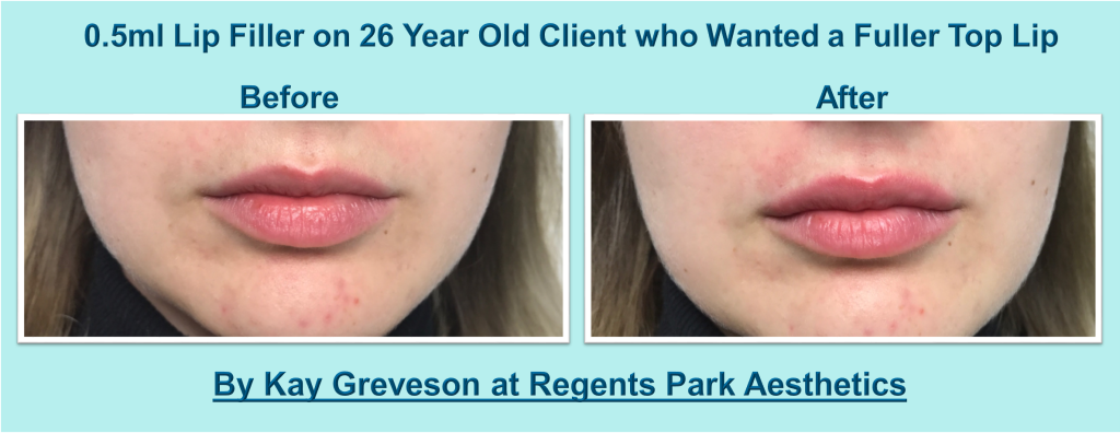Lip Fillers All The Treatment Facts And Before Amp After Images