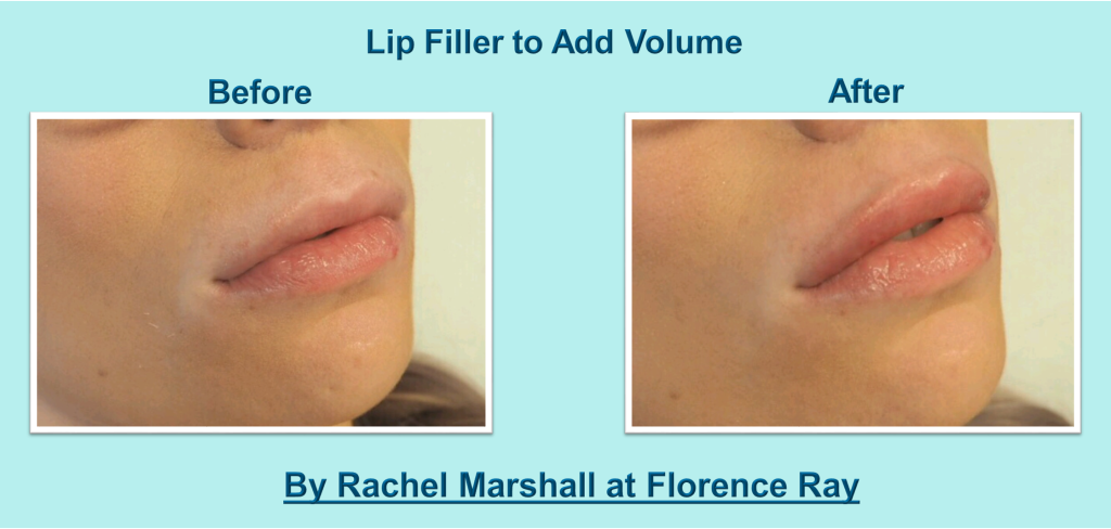 Lips 3 Florence Ray