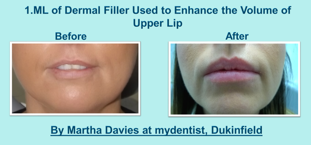 lip fillers martha mydentist