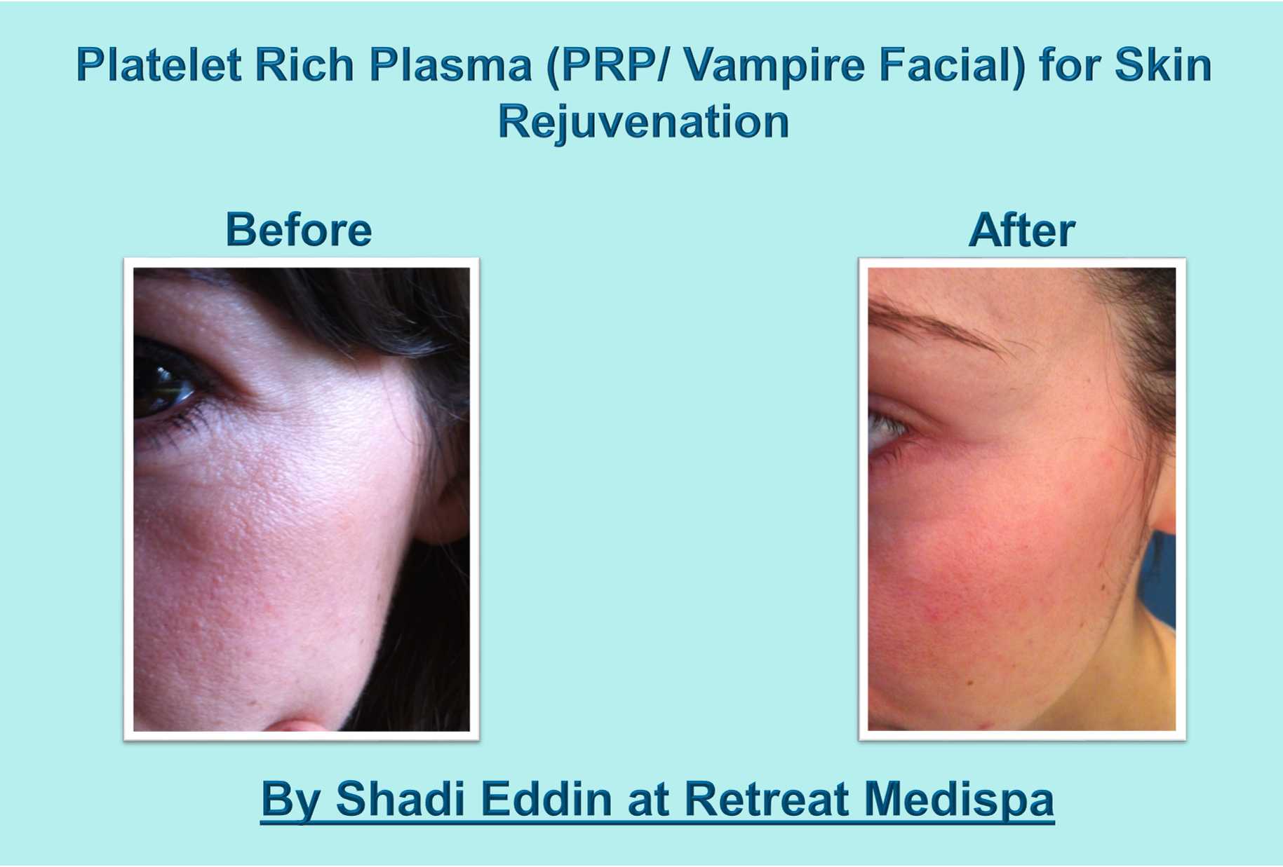 Platelet Rich Plasma Prp Therapy Information Amp Before