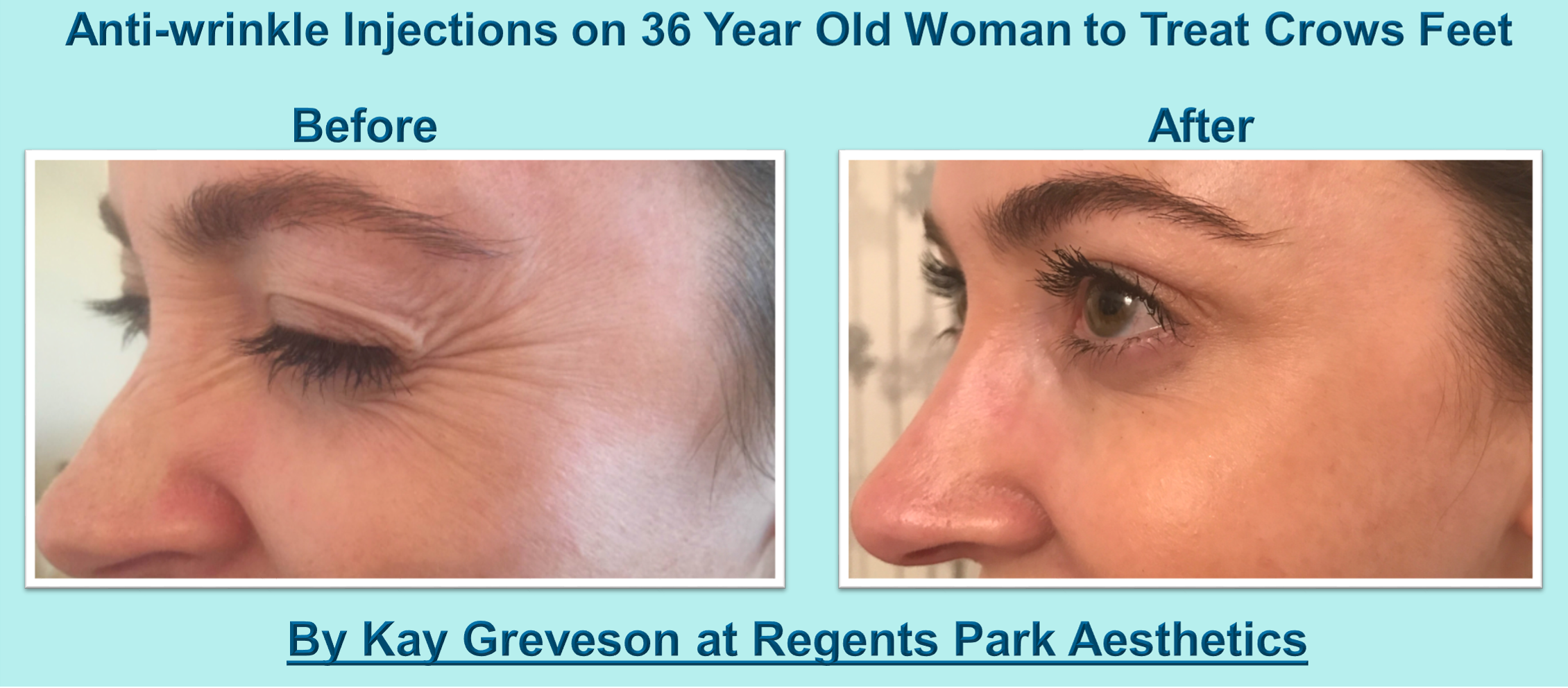 Botox Crows Feet Kay Greveson - Save Face