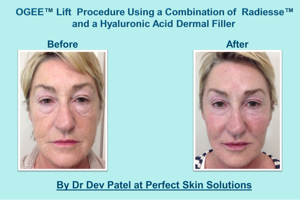 Non-Surgical Facelift Treatment Information & Before and After Images