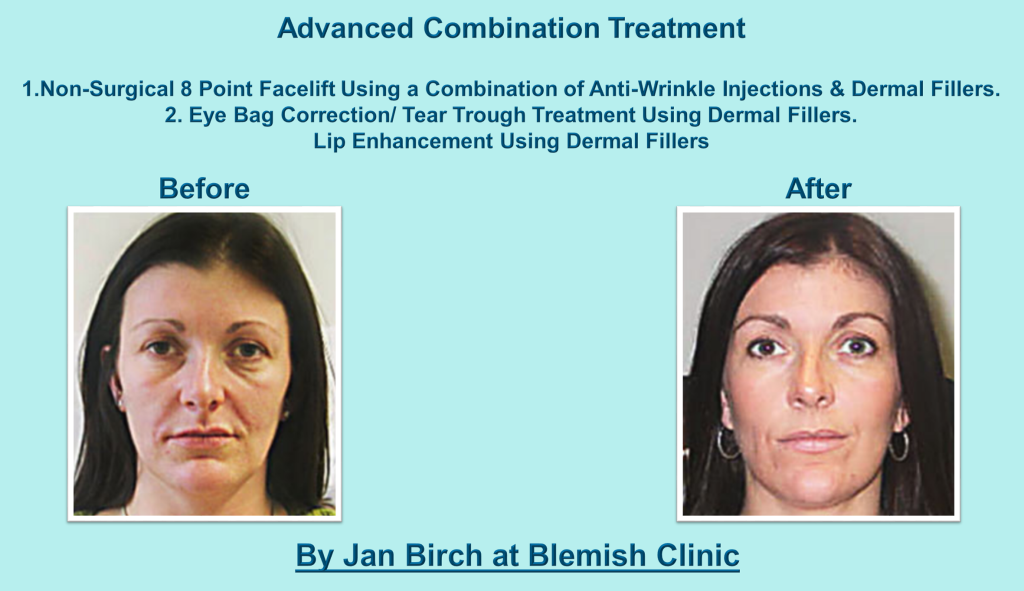 Jan Birch 8 point face lift combo