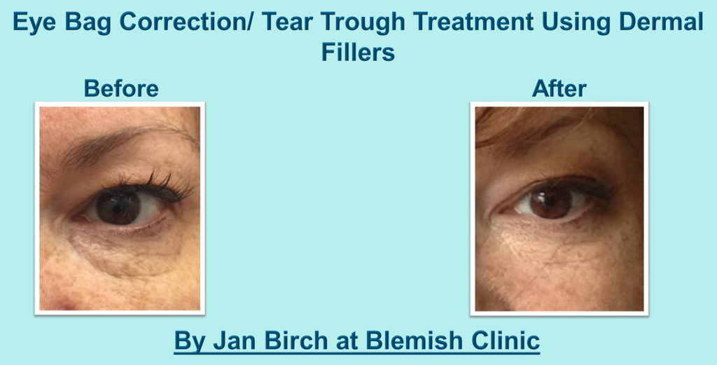 Jan Birch Blemish Tear Troughs
