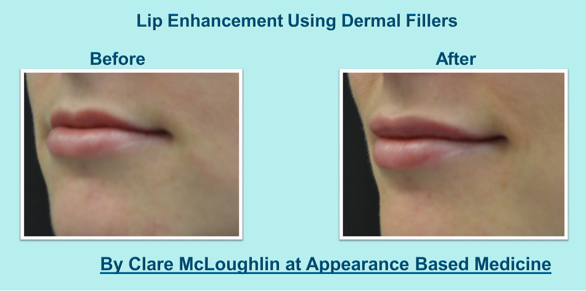 Lip Fillers Treatment Information and Before & After Images