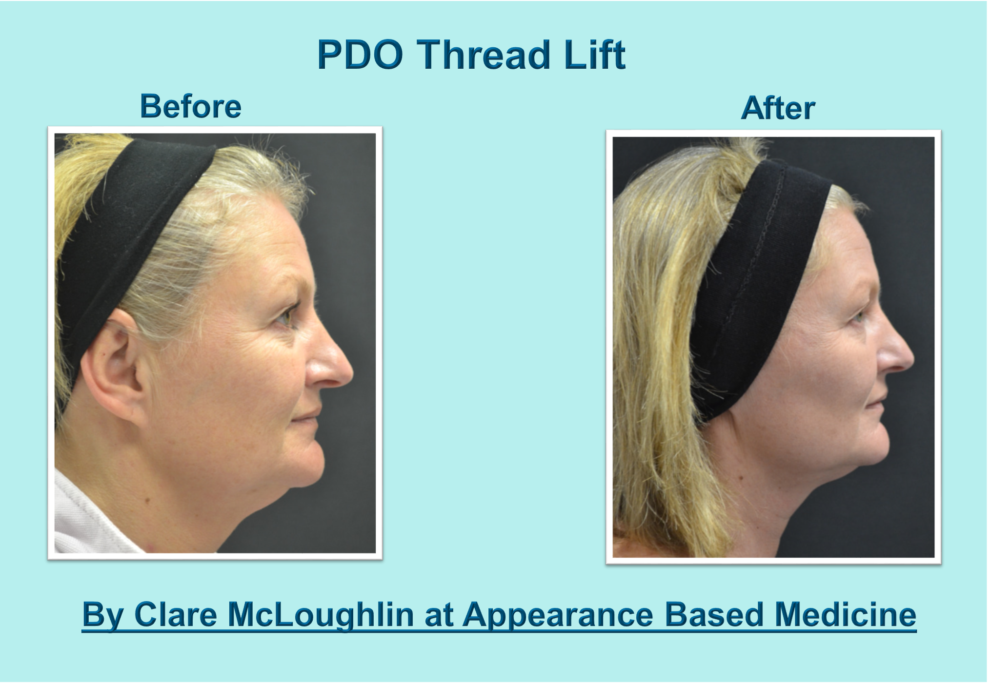 PDO Thread Lift Information Including Before & After Images