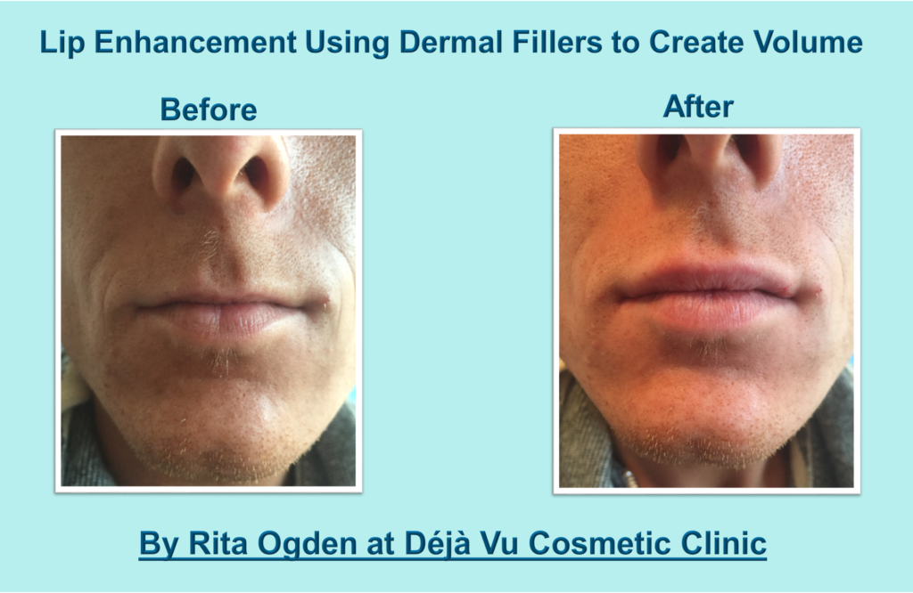 Lip Fillers Treatment Information And Before Amp After Images