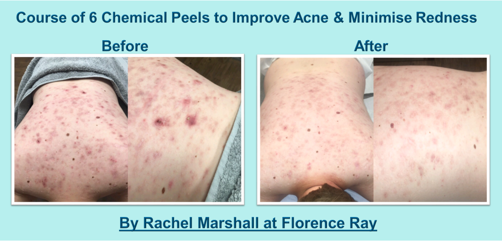 chemical peels  Florence Ray